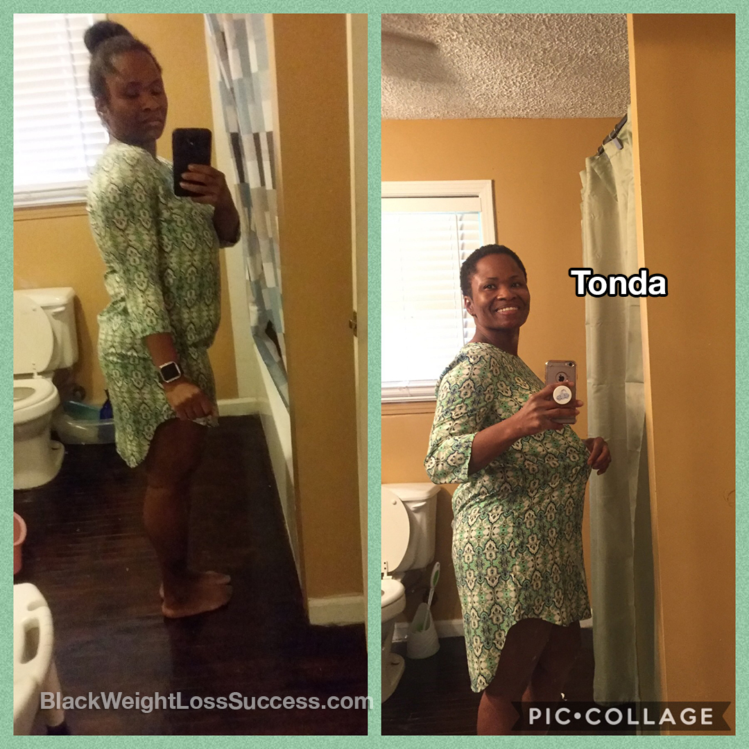 tonda before and after