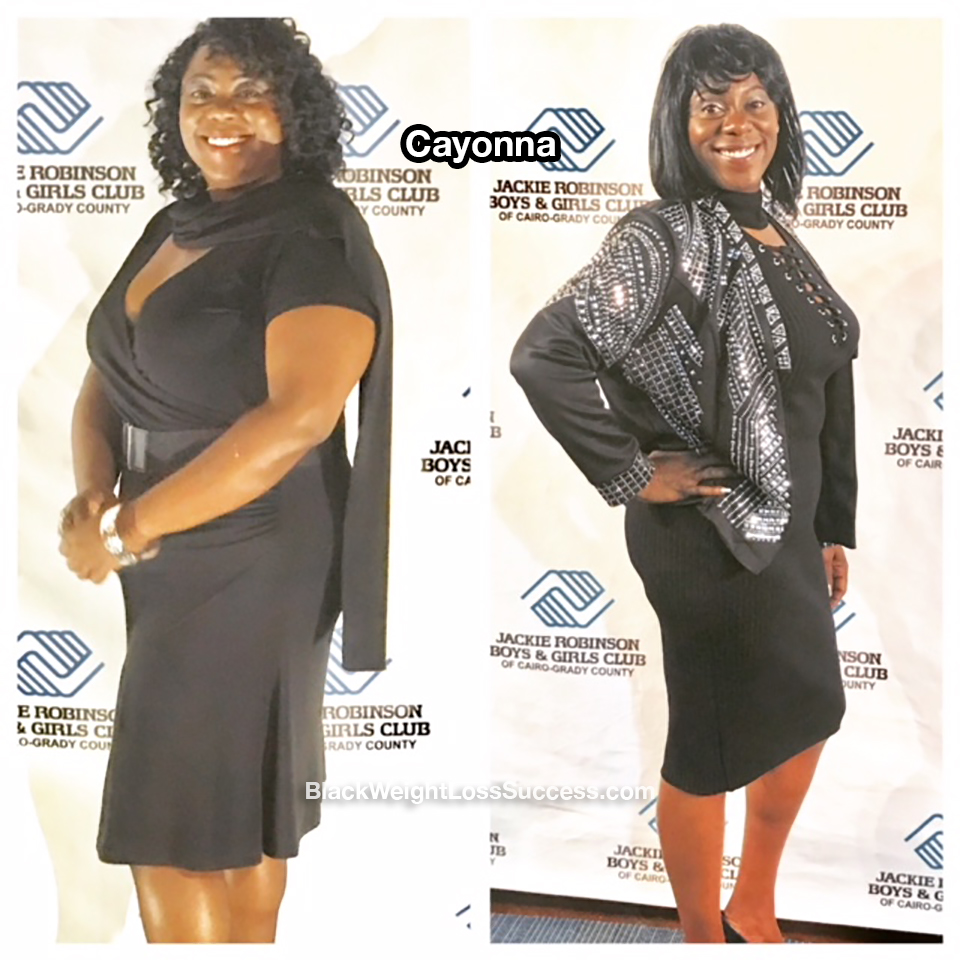 Cayonna before and after