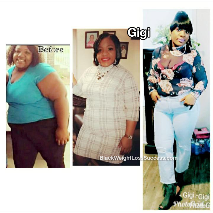 gigi before and after