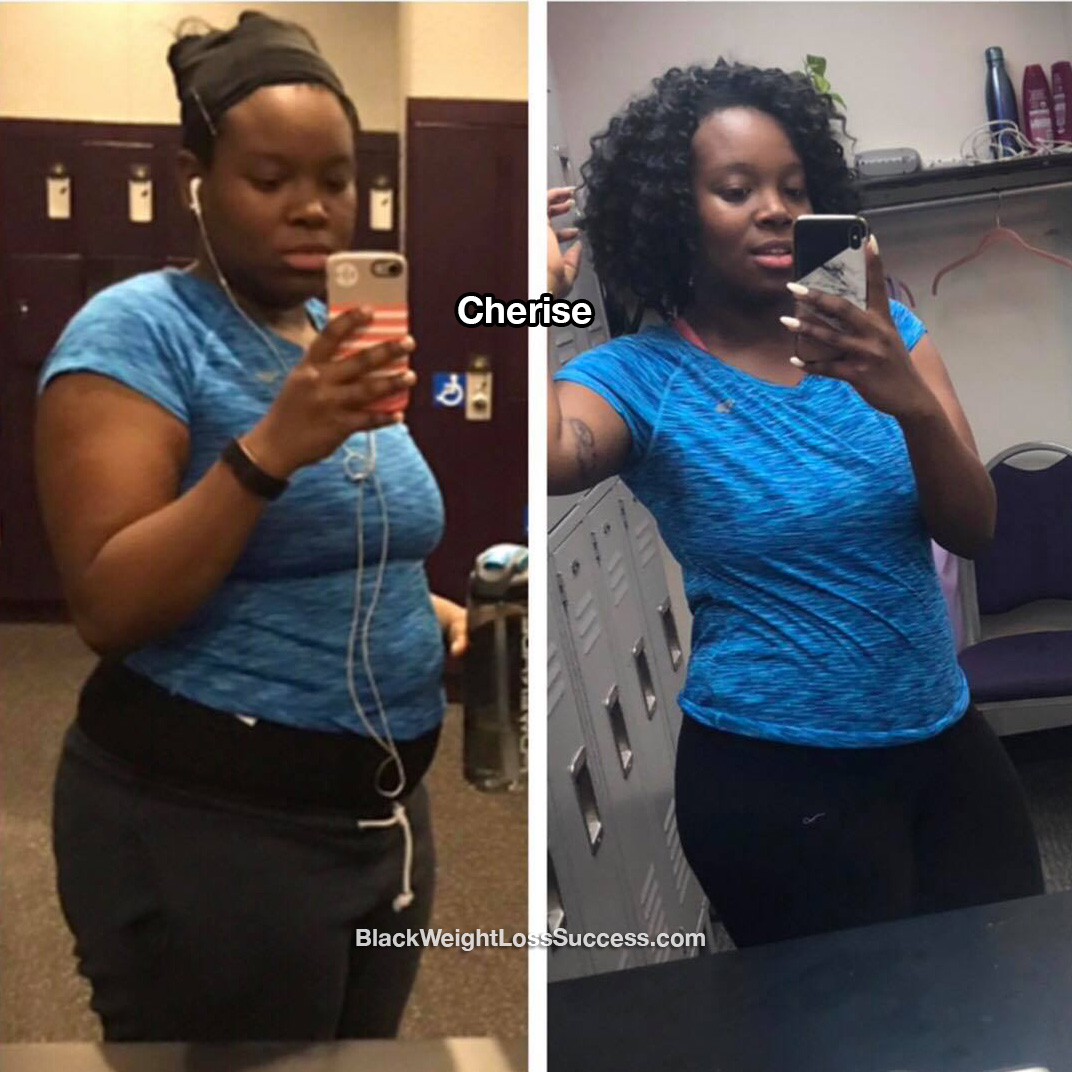 cherise before and after