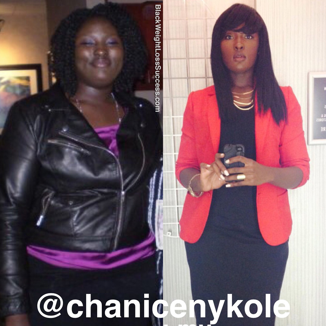 Chanice before and after