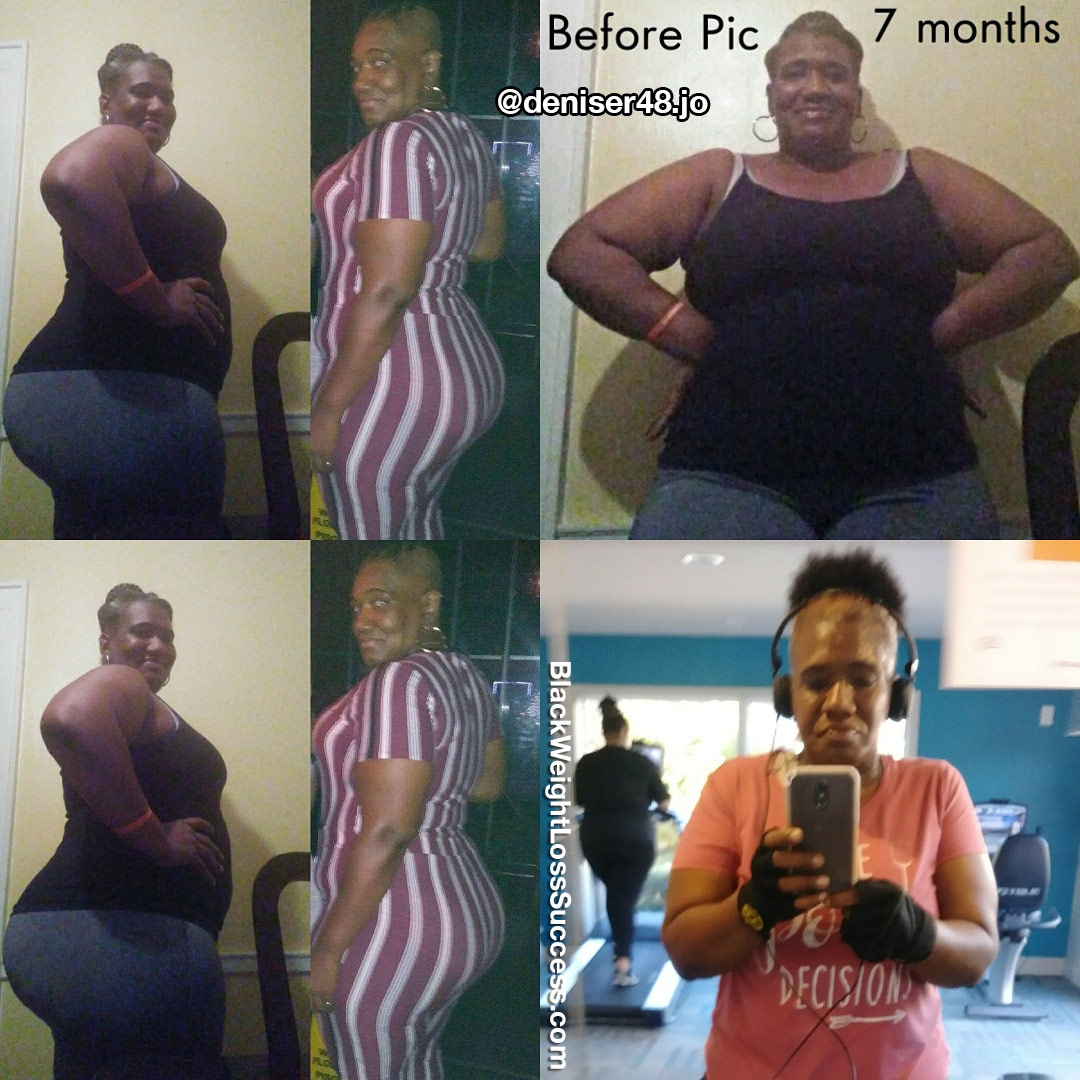 Valerie before and after