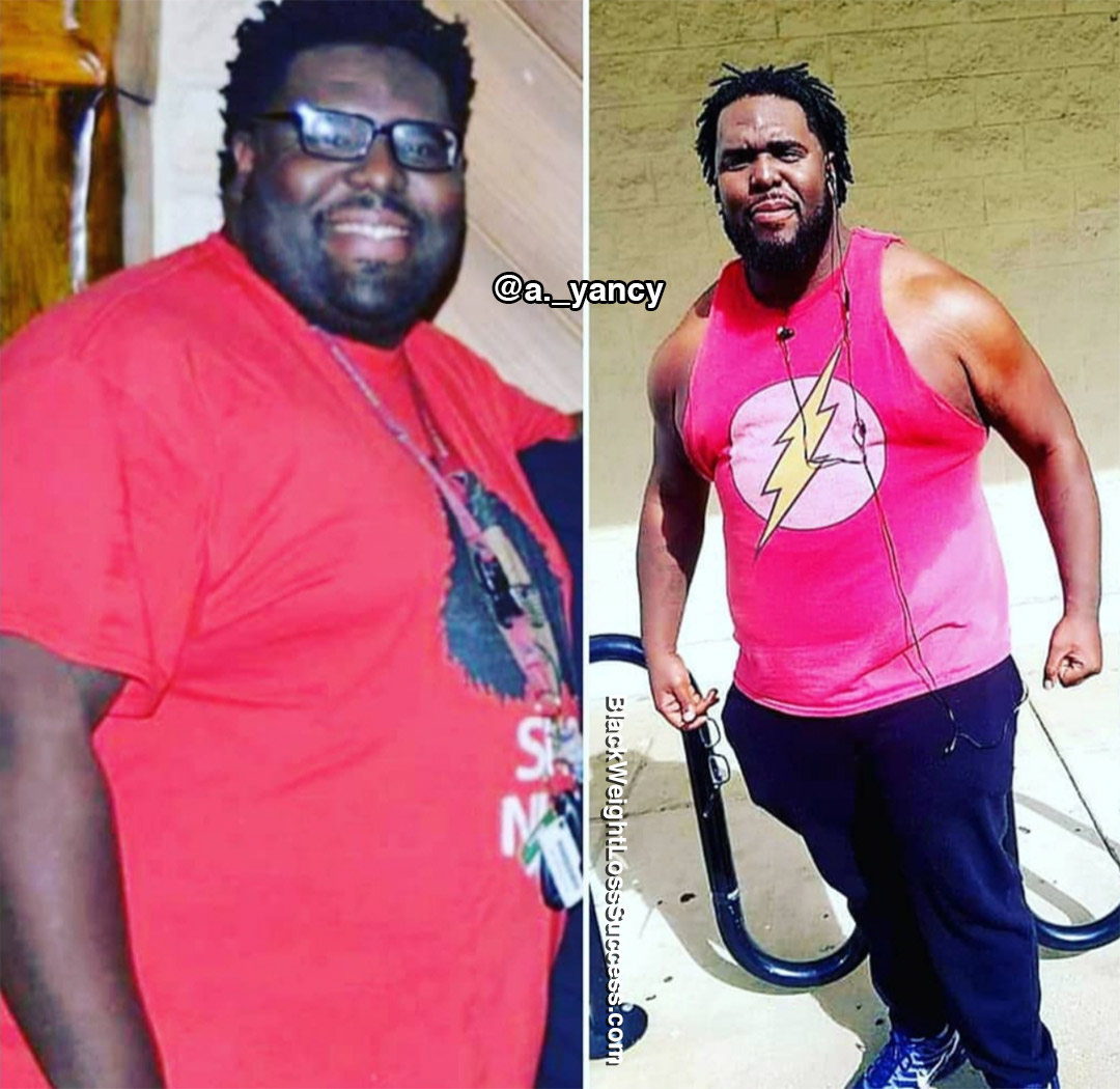 A. Yancy before and after