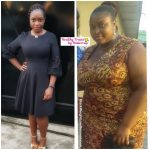 Nneoma before and after