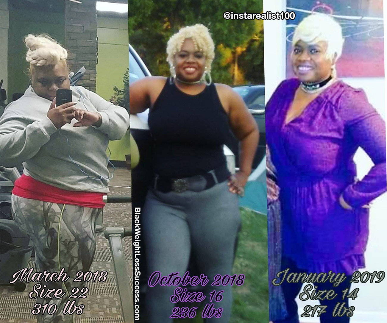 Shunte' before and after