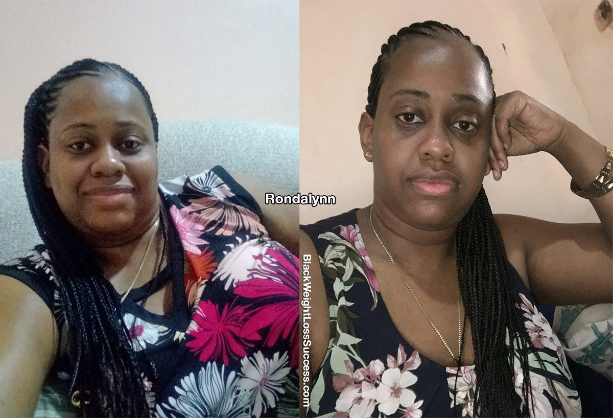 Rondalynn before and after