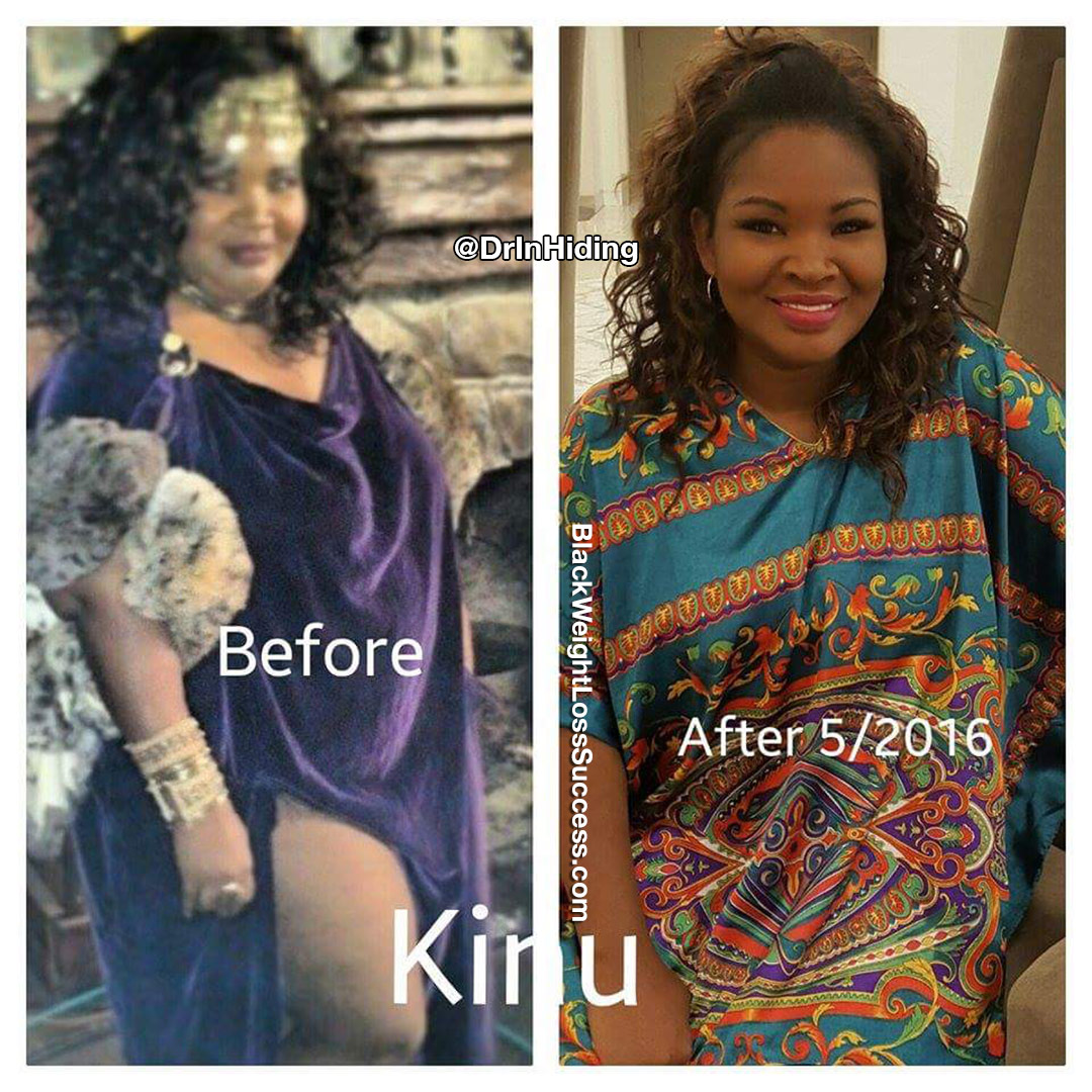 Kinu before and after