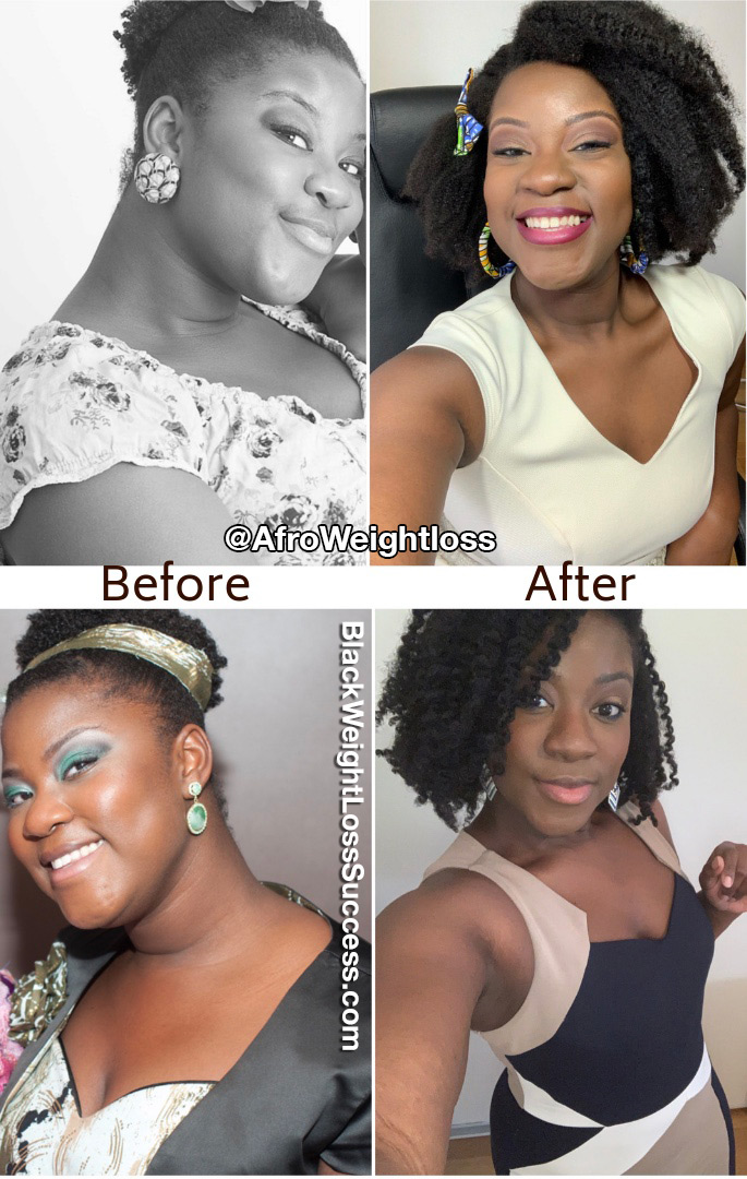 Lovelyn before and after