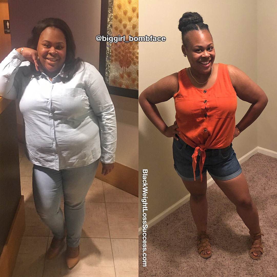 Patricia before and after