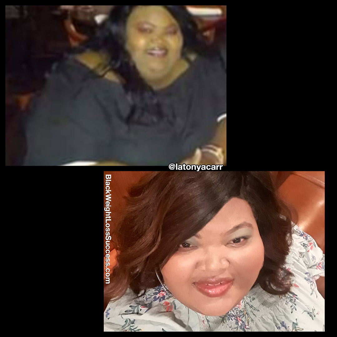 Latonya before and after