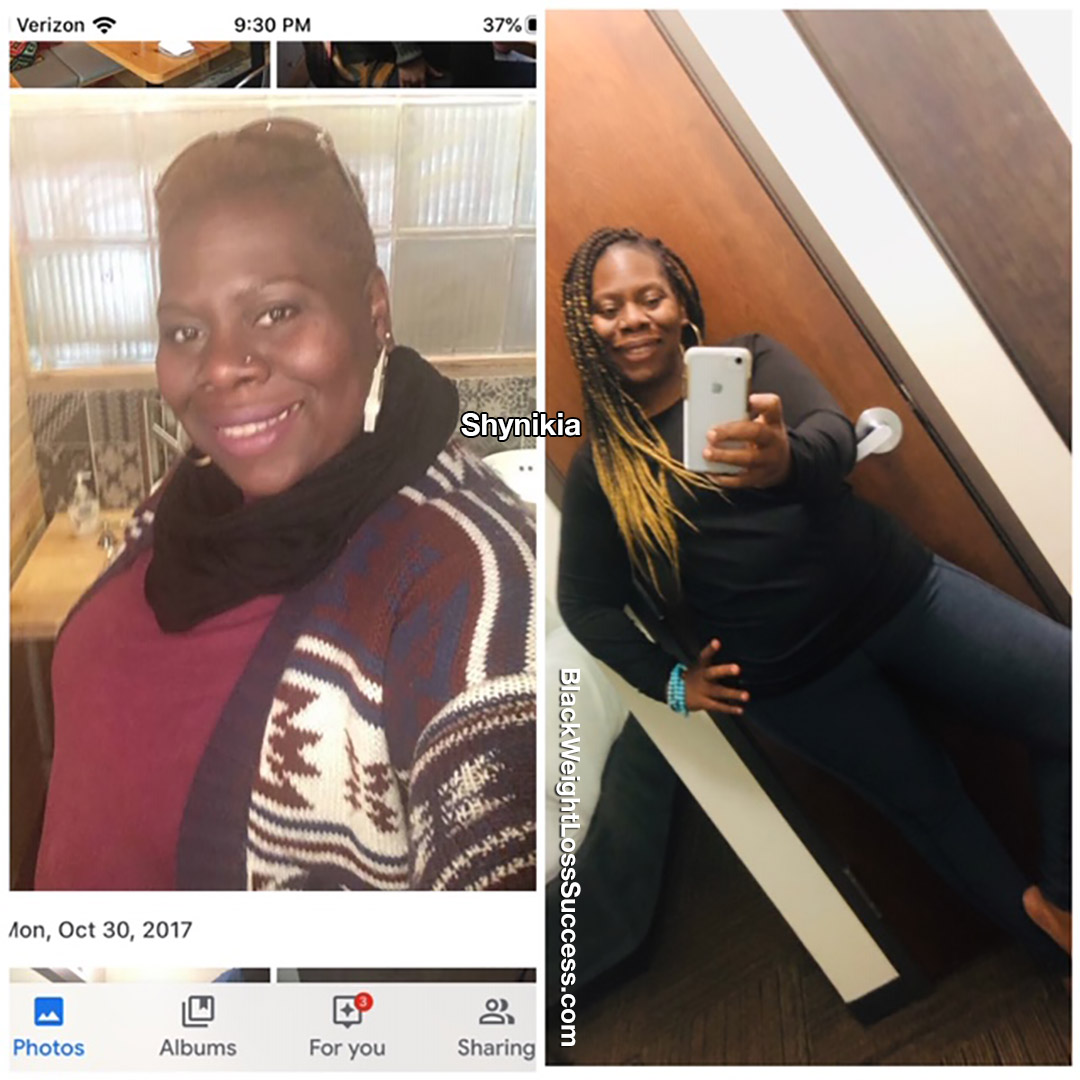 Shynikia before and after
