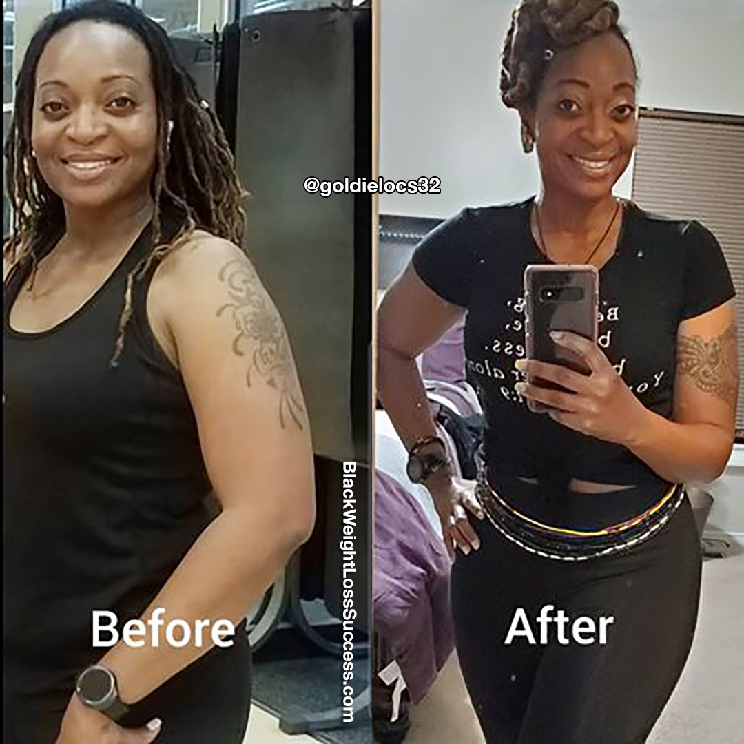 Sclonda before and after
