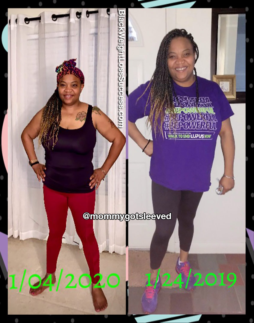 Nikki before and after VSG surgery