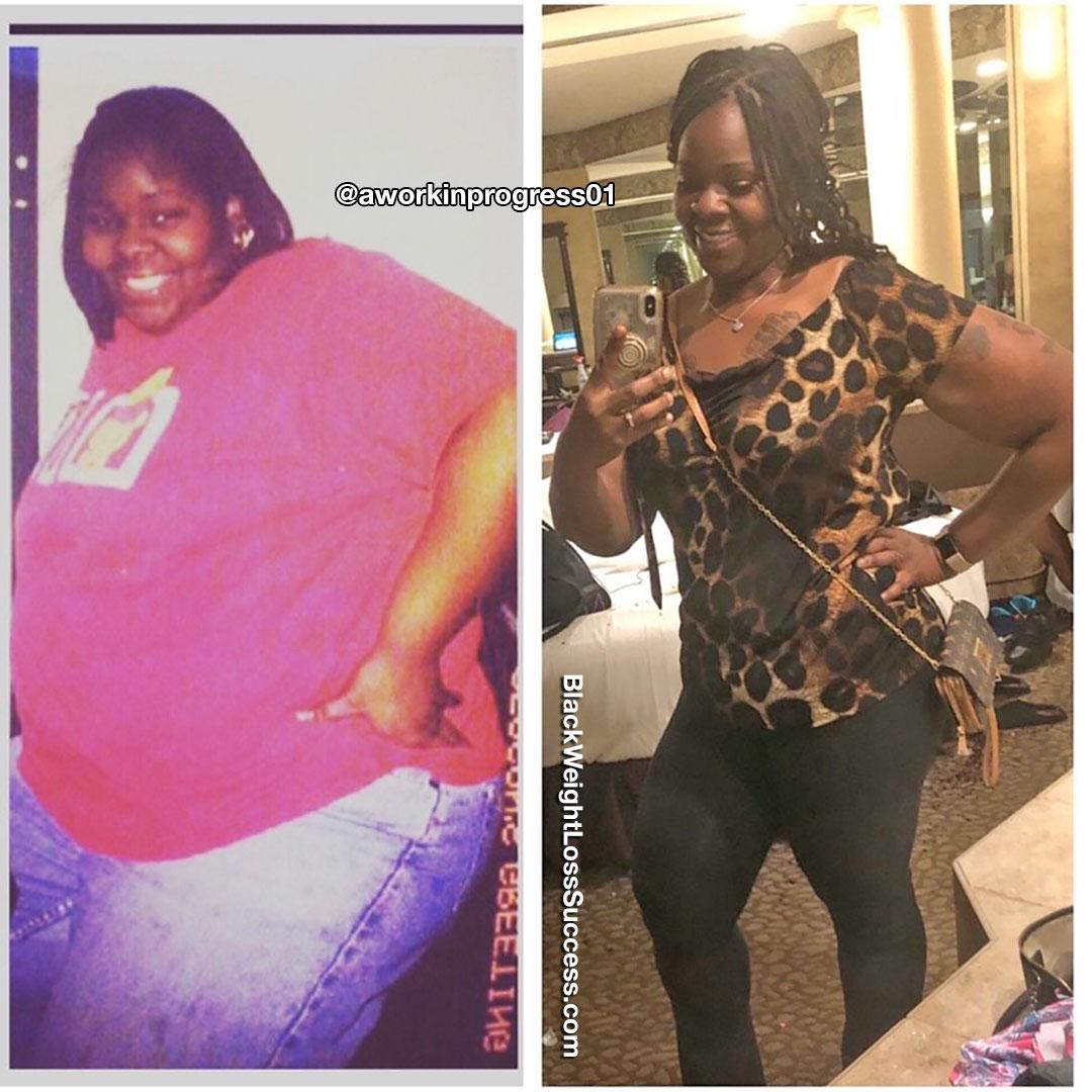 Dee perdeu 181 libras   Sucesso de perda de peso preto 6
