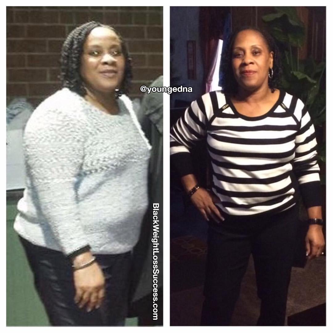 Edna perdeu 50 quilos | Sucesso de perda de peso preto 1