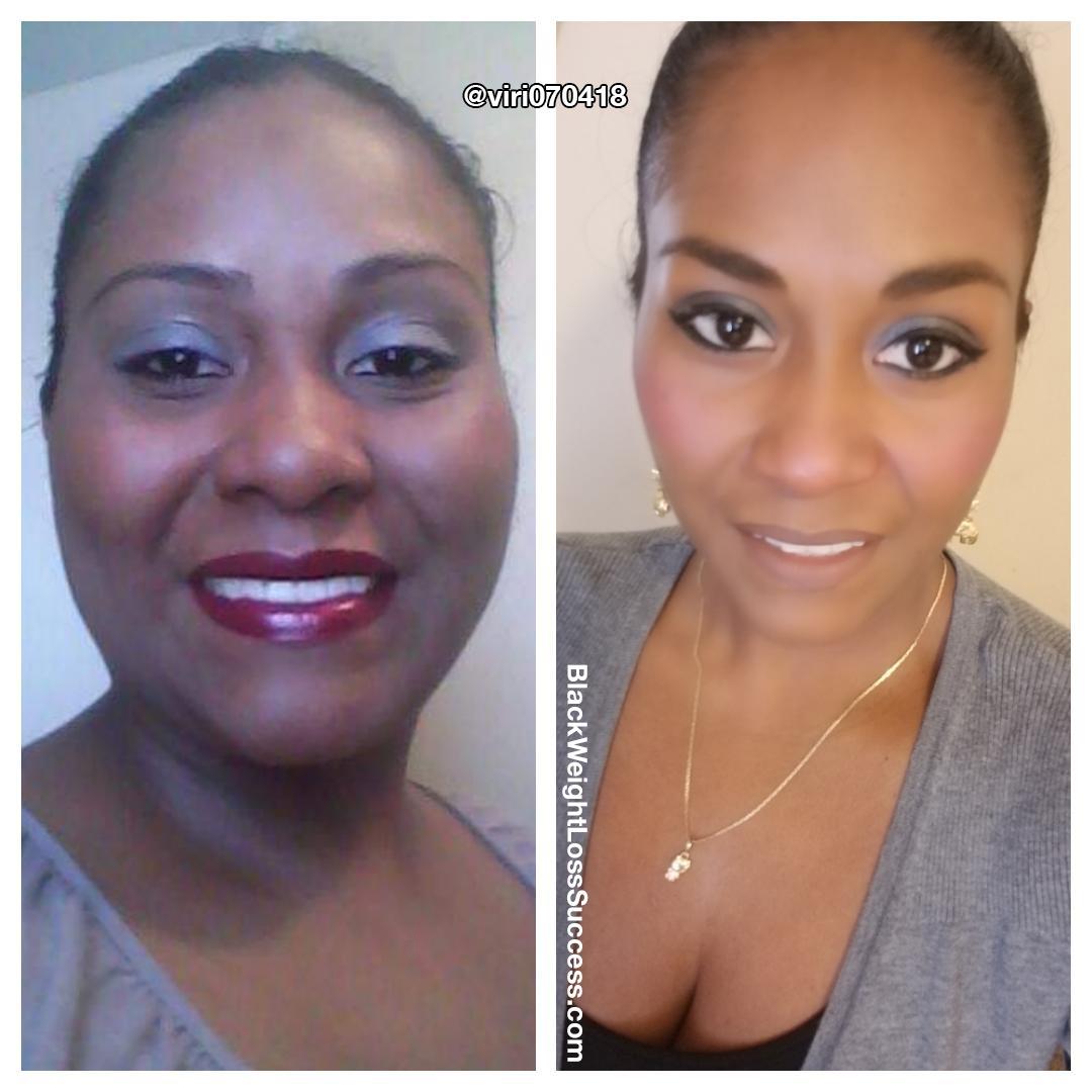 Rosmira antes e depois
