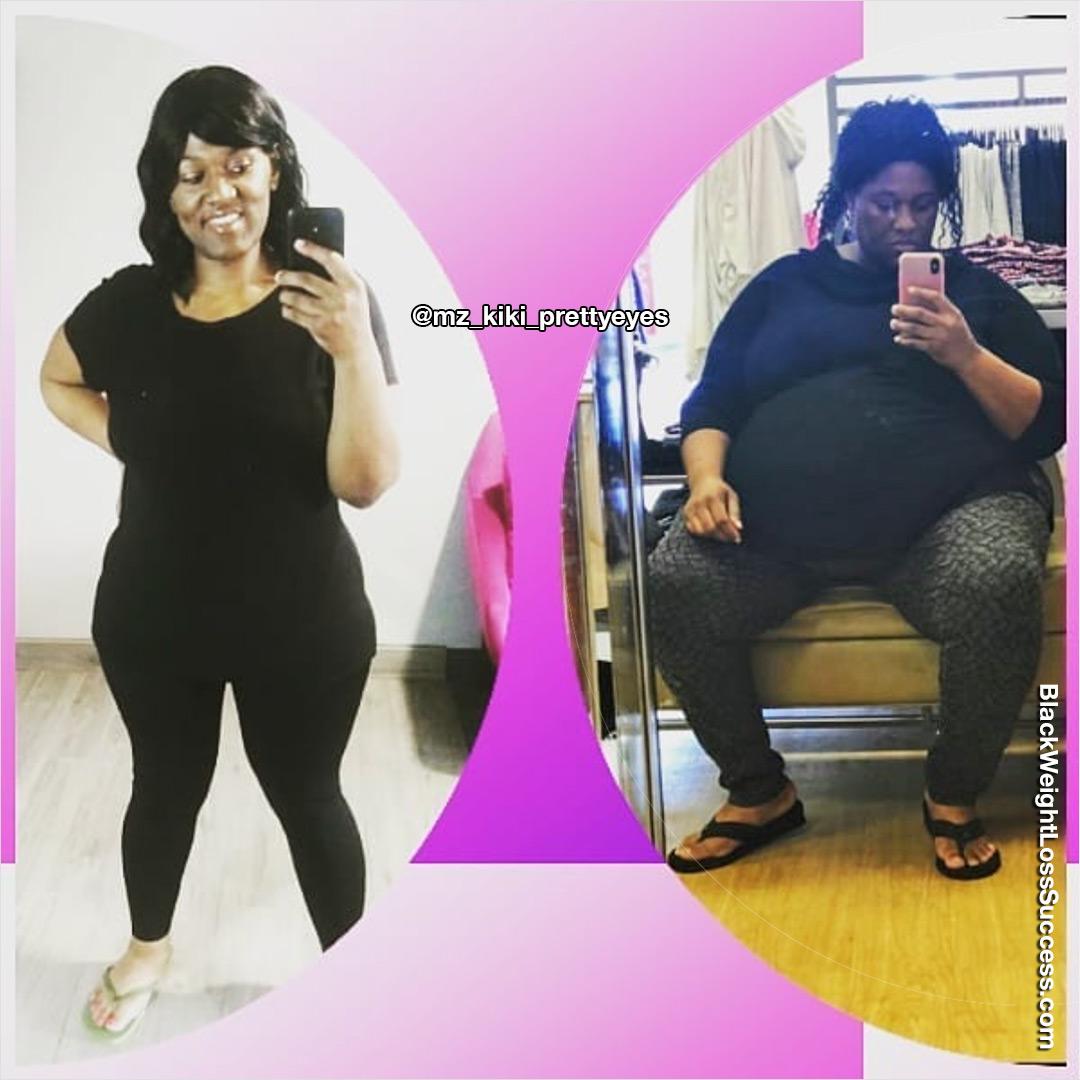 Yakila perdeu 150 libras   Sucesso de perda de peso preto 13