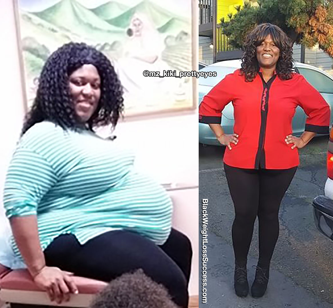 Yakila lost 150 pounds