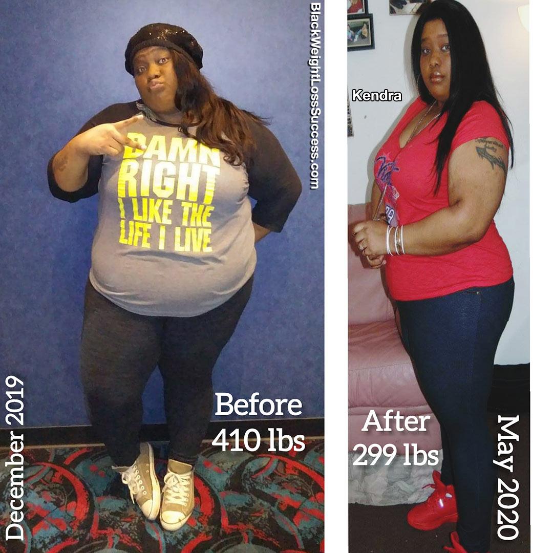 Kendra antes e depois