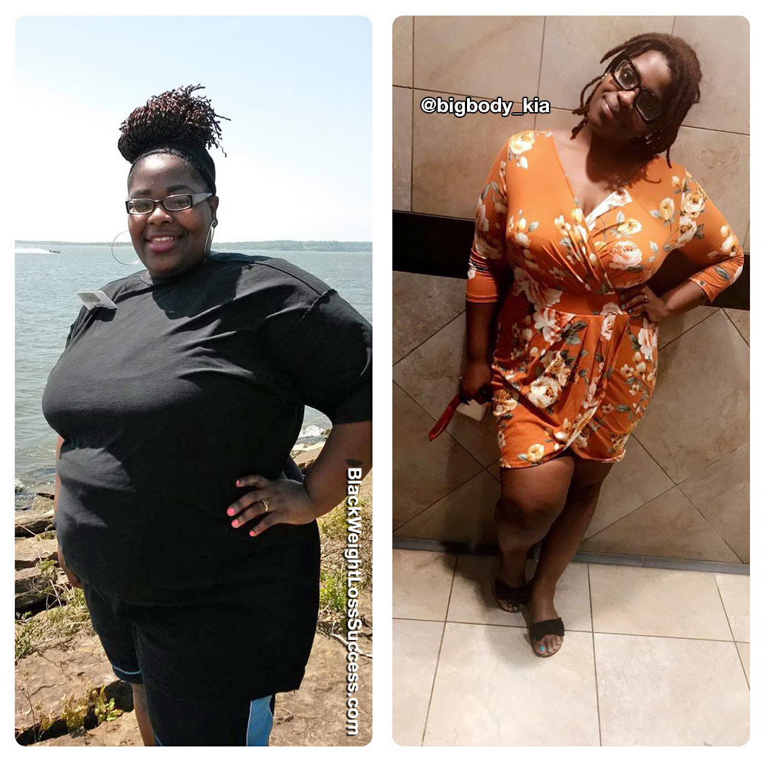 Photo of Shakia lost 177 pounds   Black Weight Loss Success