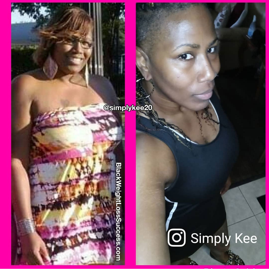 Kee before and after