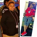 Trecie before and after