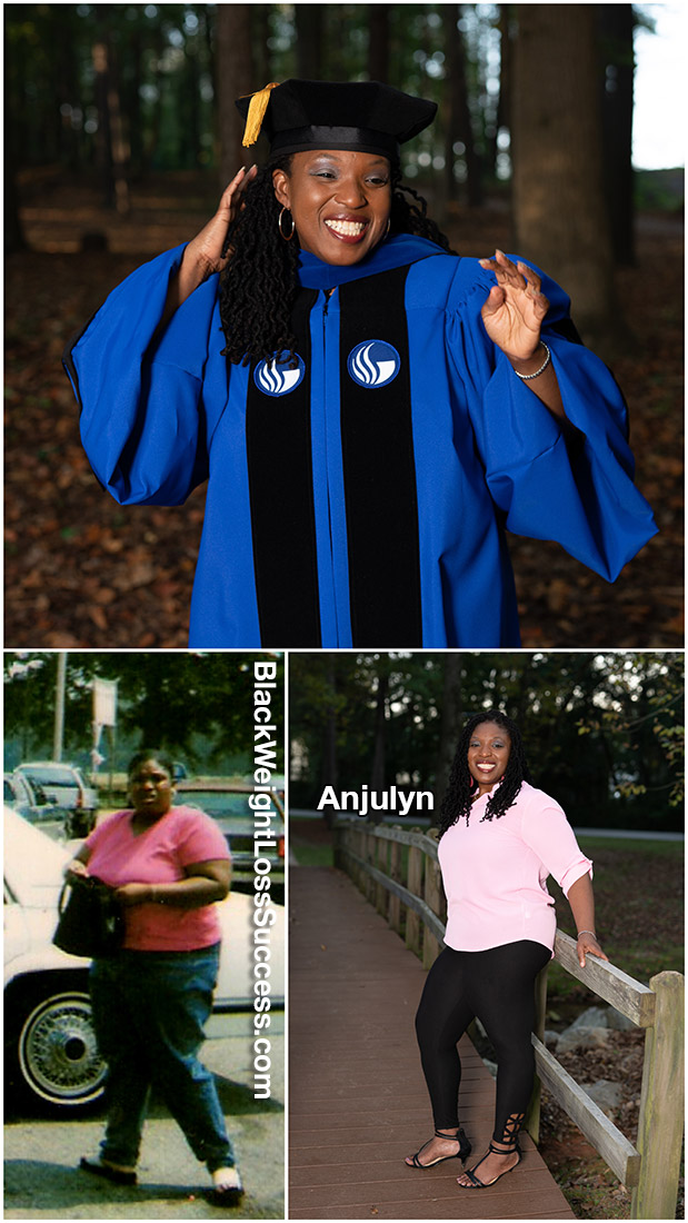 Anjulyn before and after