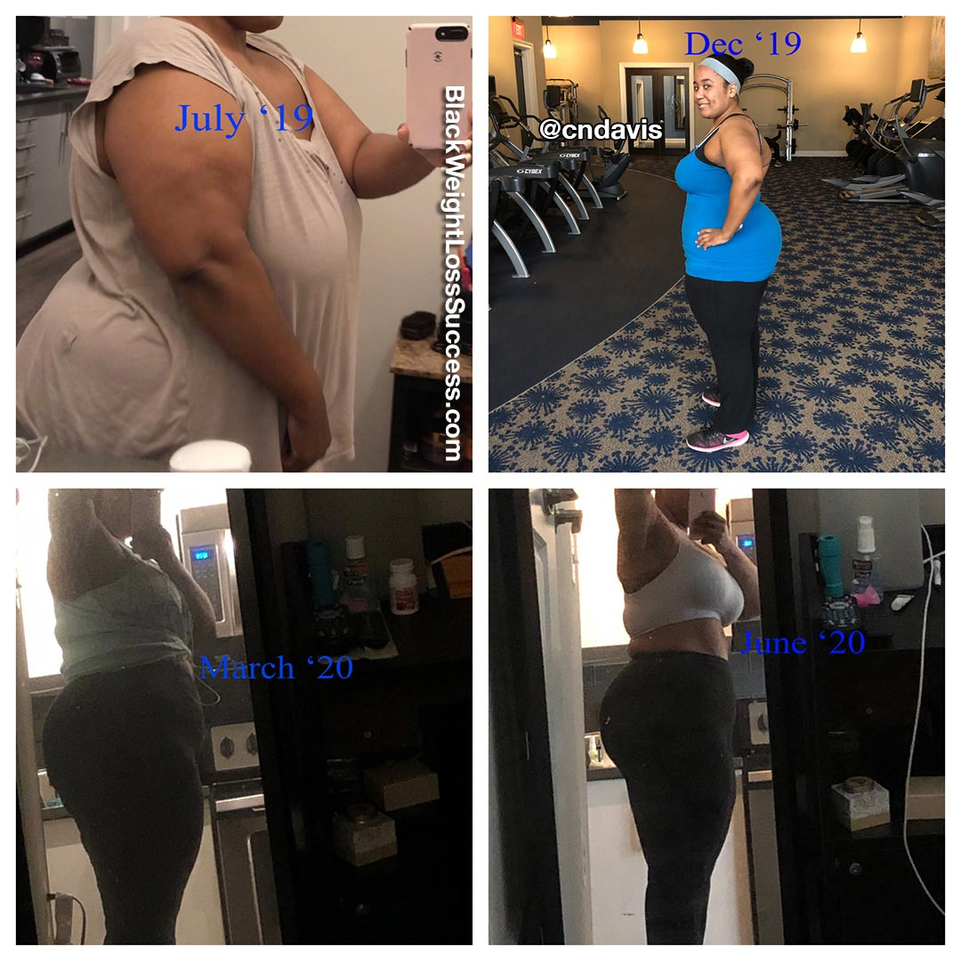 Candice before and after weight loss