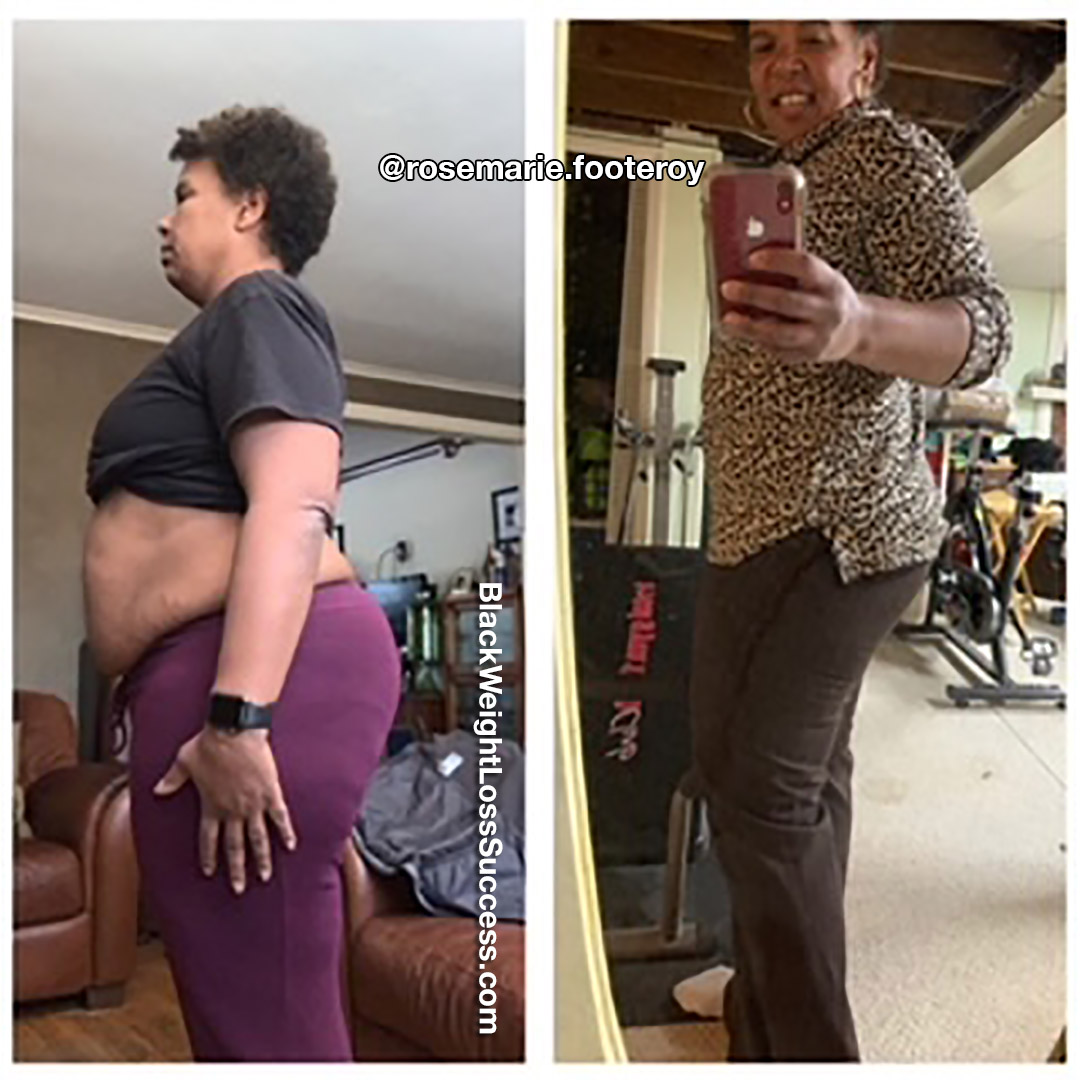 Rosemarie before and after
