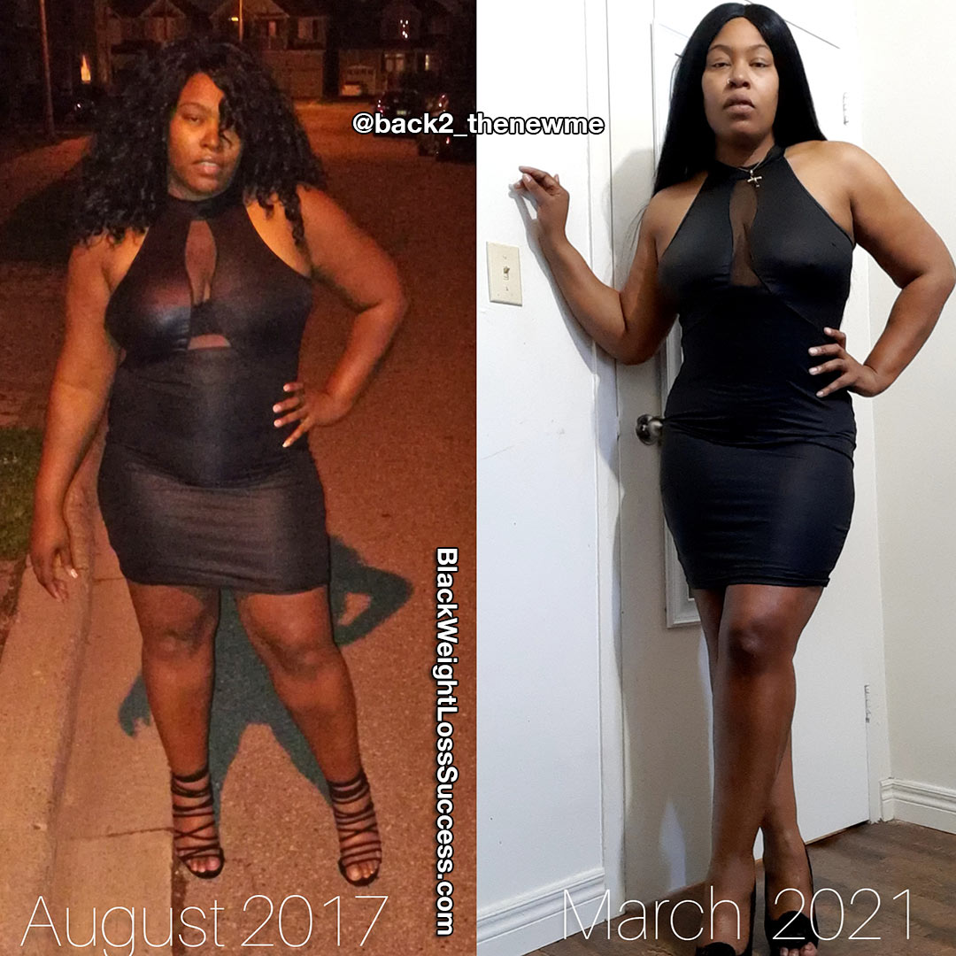 Renee before and after