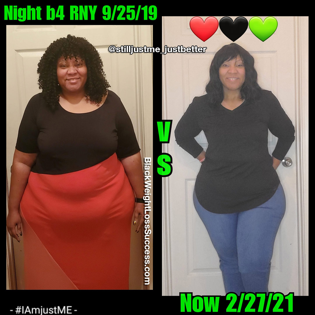 Melissa before and after weight loss