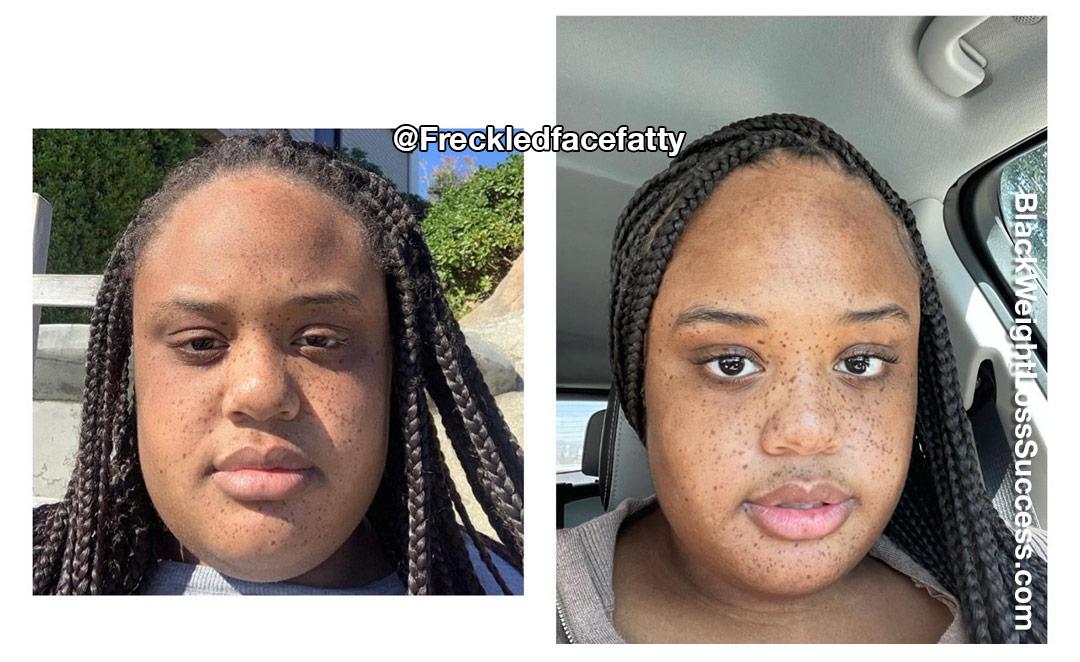 Ashley lost 75 pounds